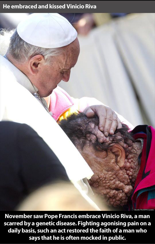 Francis embraces and kisses man with horribly disfiguring and painful disease